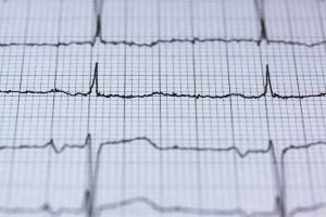 ekg printout - heart attack symptoms differ in women and men